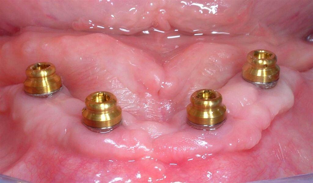 Impianti Straumann: riabilitazione di edentulia totale mandibolare con overdenture a supporto implantare mediante sistema di ancoraggio Locator®