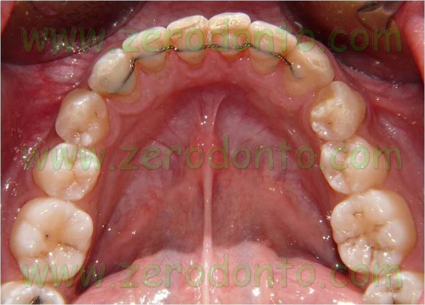 allineamento denti