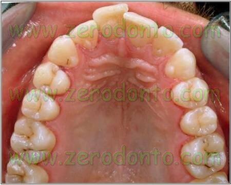 soprapposizione dei denti anteriori