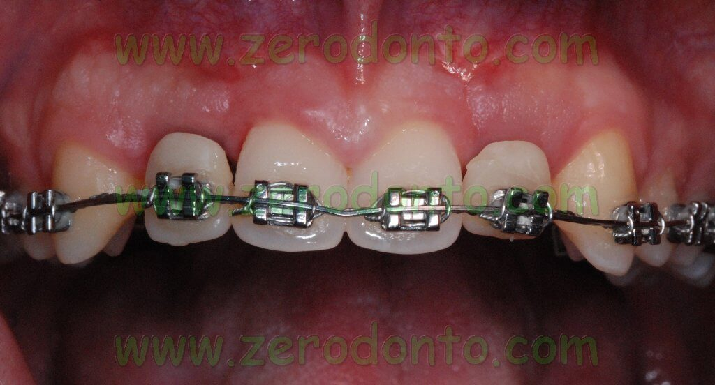Provvisorio ortodontico