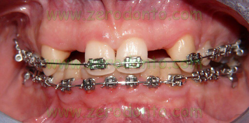 Trattamento ortodontico pre-implantare