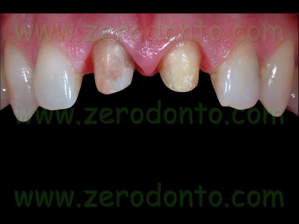 Preparazione dentaria