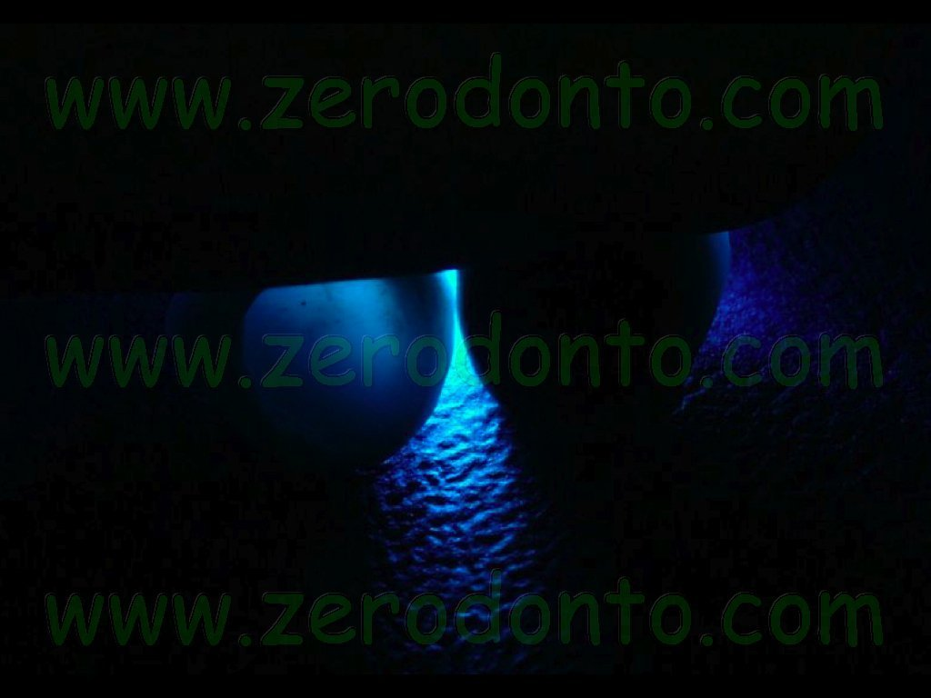 Transilluminazione corona zirconia vs metallo-ceramica