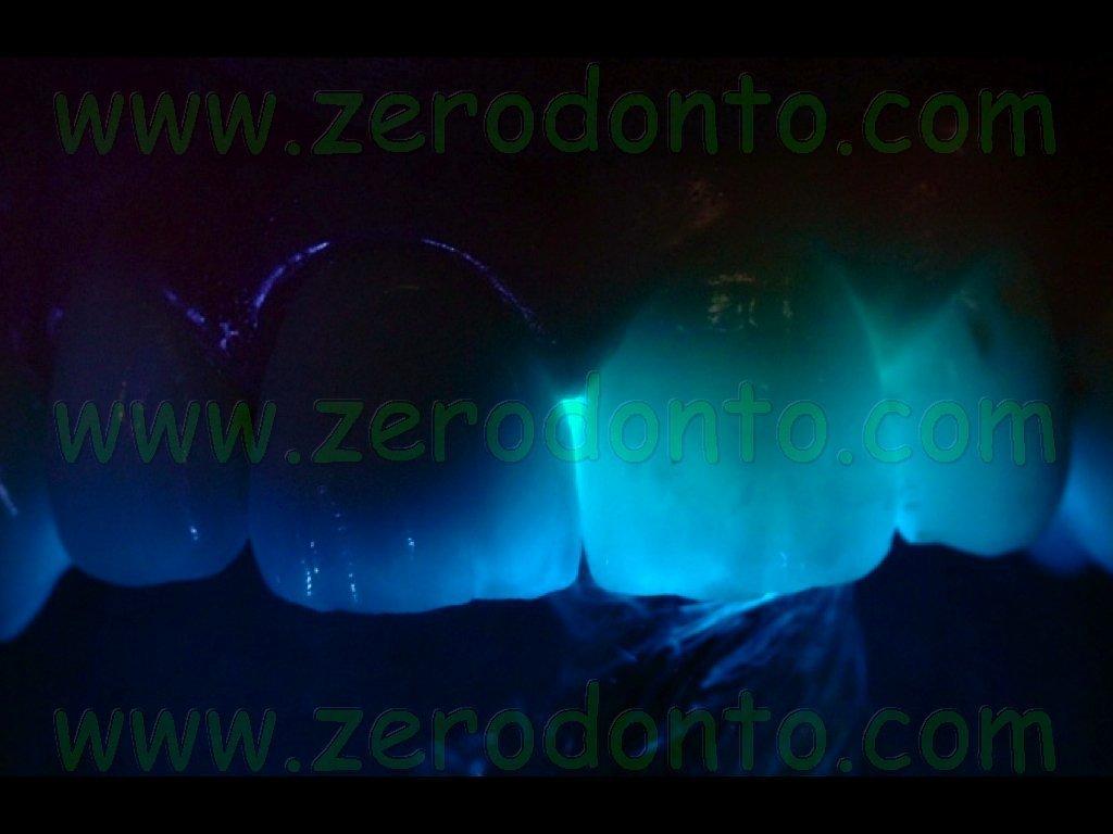 Transilluminazione intraorale protesi zirconia e oro-ceramica