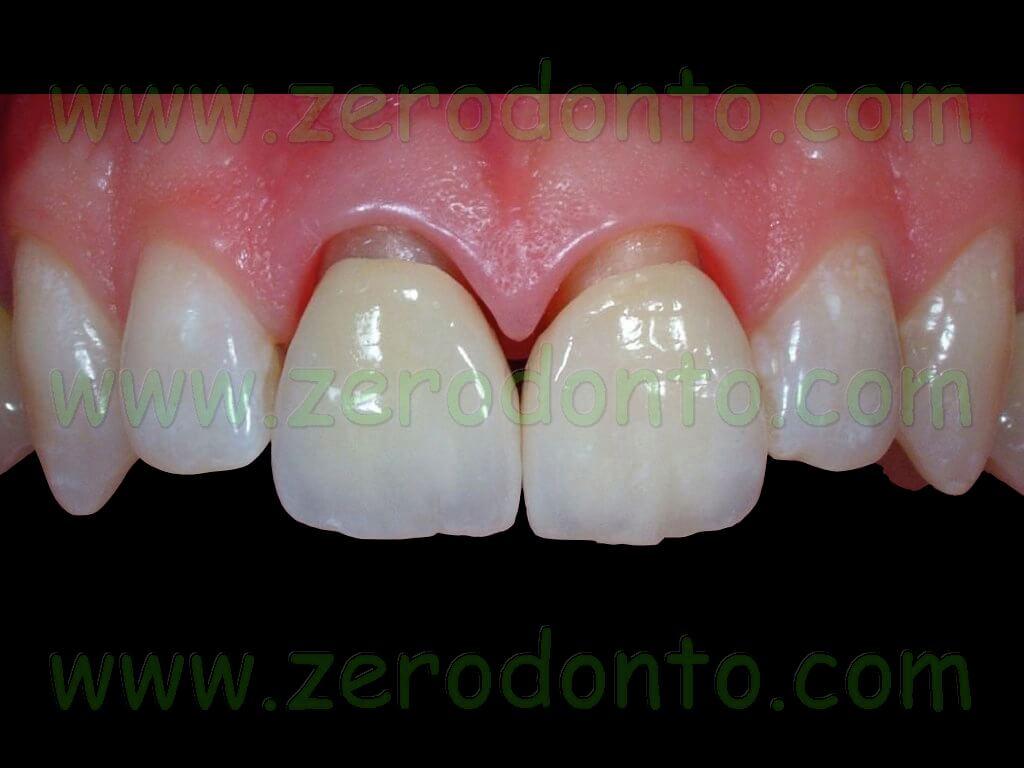 adattamento marginale corone metallo-ceramica vs zirconia