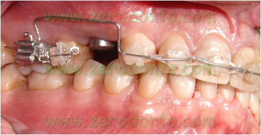 Leva ortodonzia