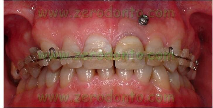 Vite ortodontica