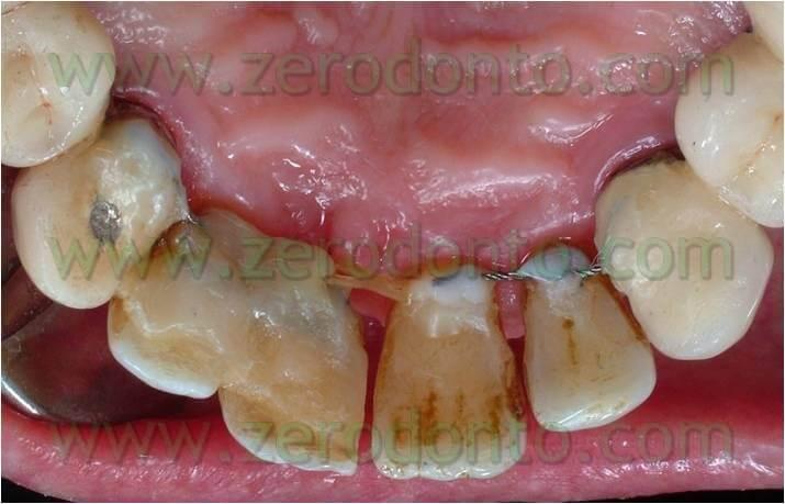 Catena ortodontica
