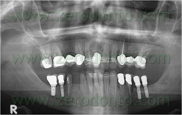 Impianti mandibolari