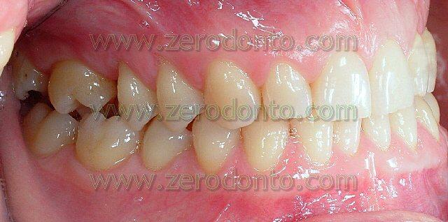 pregressa estrazione del primo molare