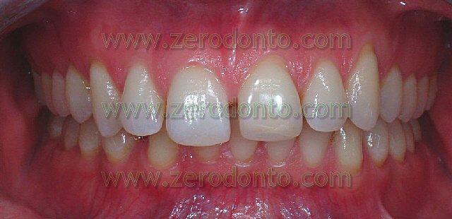 diastemi dentari