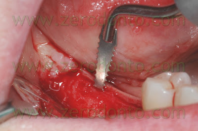 Punte soniche Sonosurgery Komet: tecnica ERE (Edentulous ridge Expansion) in due tempi