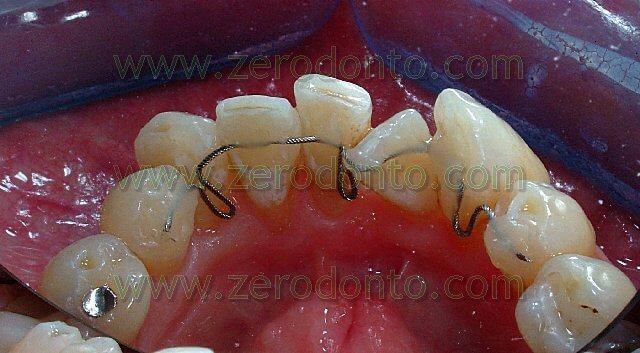 Ortodonzia linguale senza attacchi: i retainers attivi