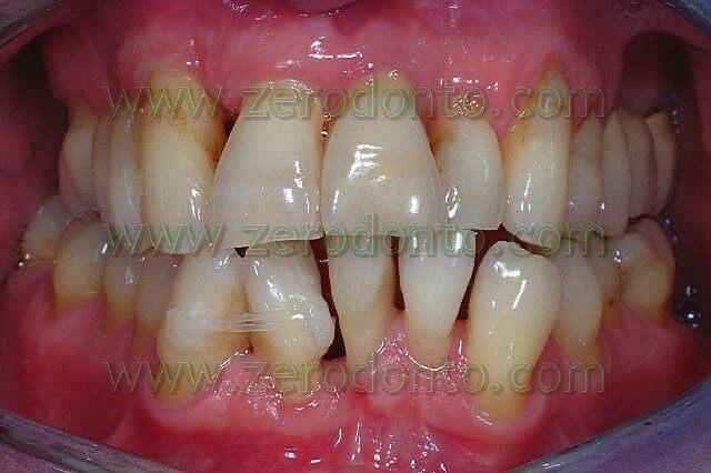 allineamento dentario invisibile