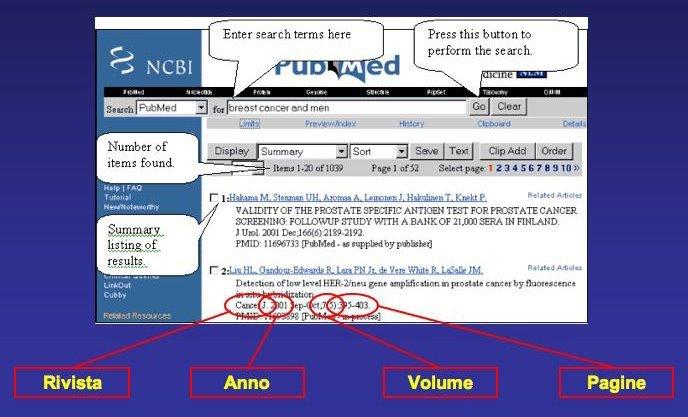 ricerca pubmed
