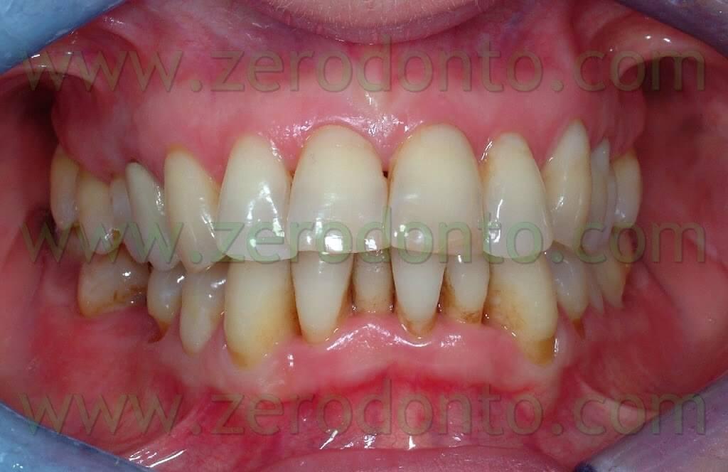 affollamento dentario