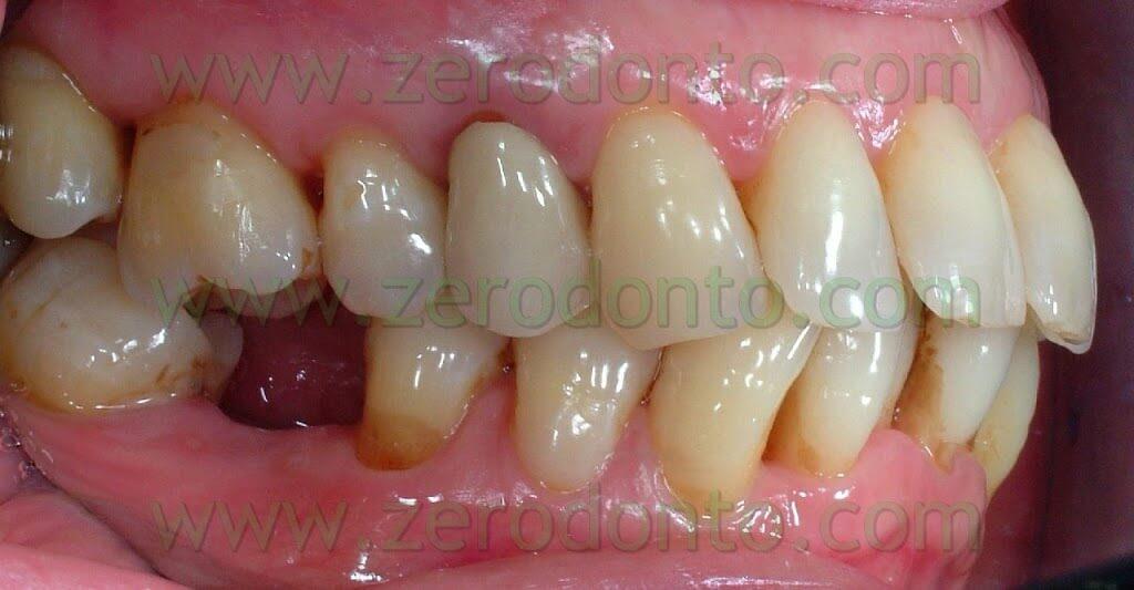 mancanza del primo molare inferiore