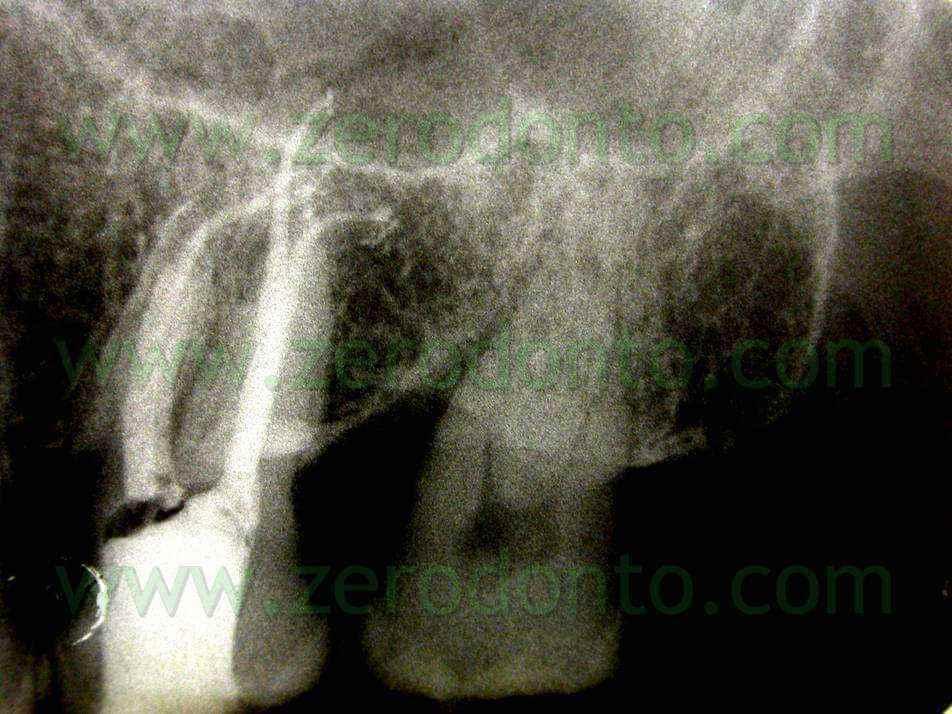 canali molare