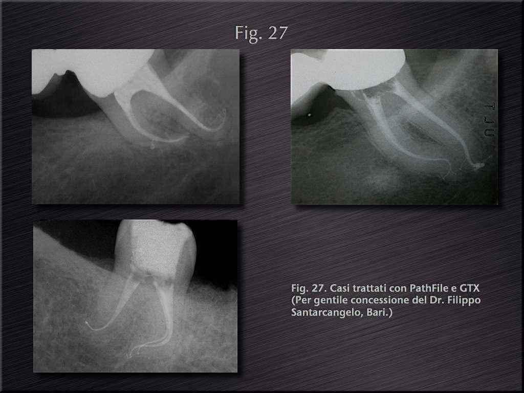 endodonzia berutti