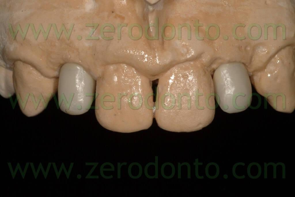 ceramica per zirconia