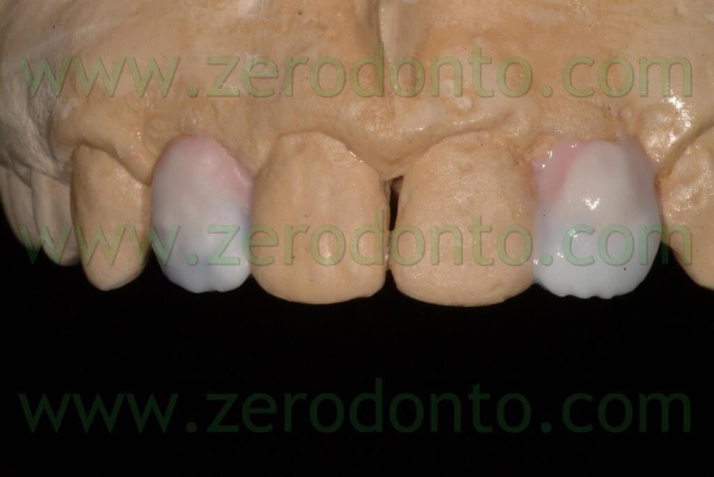 stratificazione porcellana dentale
