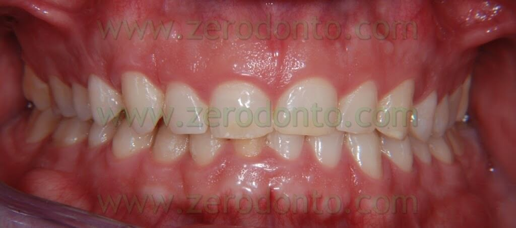 apertura del morso dopo trattamento ortodontico invisibile