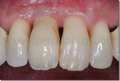 Protesizzazione in zona estetica con Corona in Ceramica Integrale su Impianto Straumann Slactive e Moncone in Zirconia Procera™