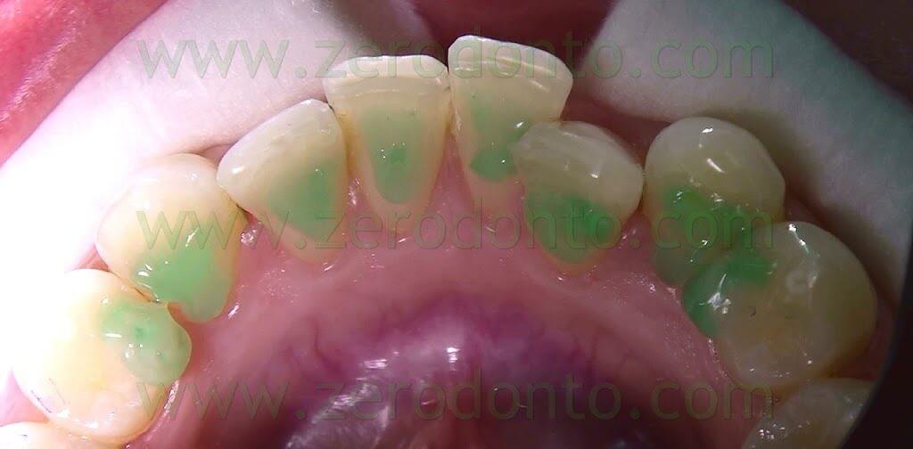 mordenzatura dei denti
