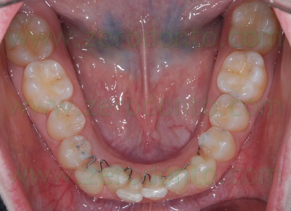 apparecchio linguale