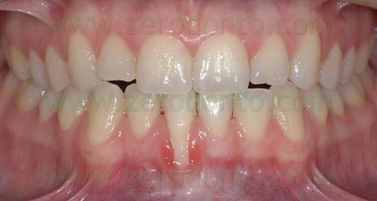 Ripristino della salute parodontale di un incisivo inferiore mediante controllo selettivo del Torque Radicolare con Apparecchiatura Ortodontica Linguale Fissa: case report