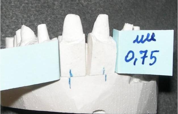 Innovativa tecnica di Ortodonzia provvisorio-guidata: case series