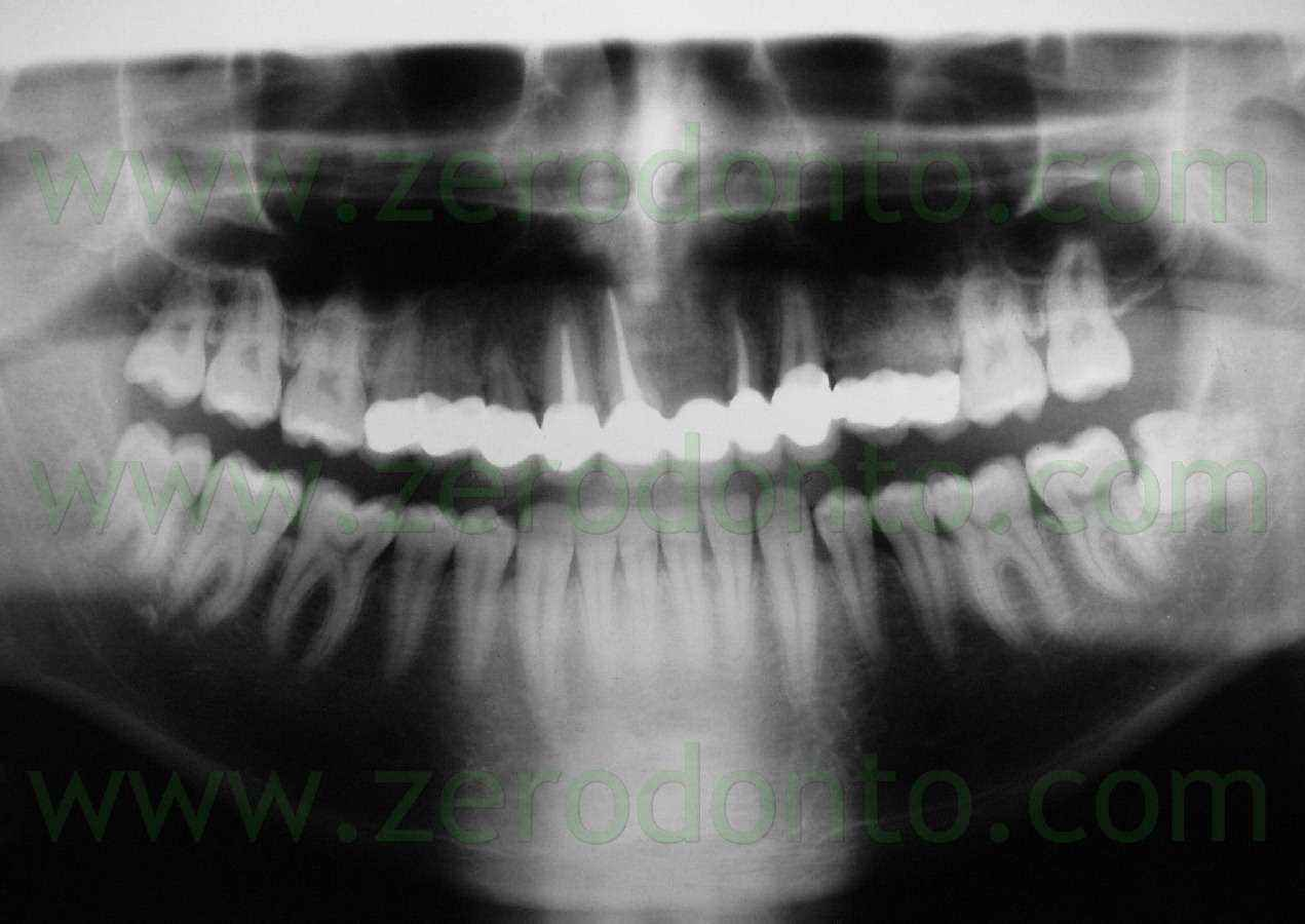 ortopantomografia iniziale