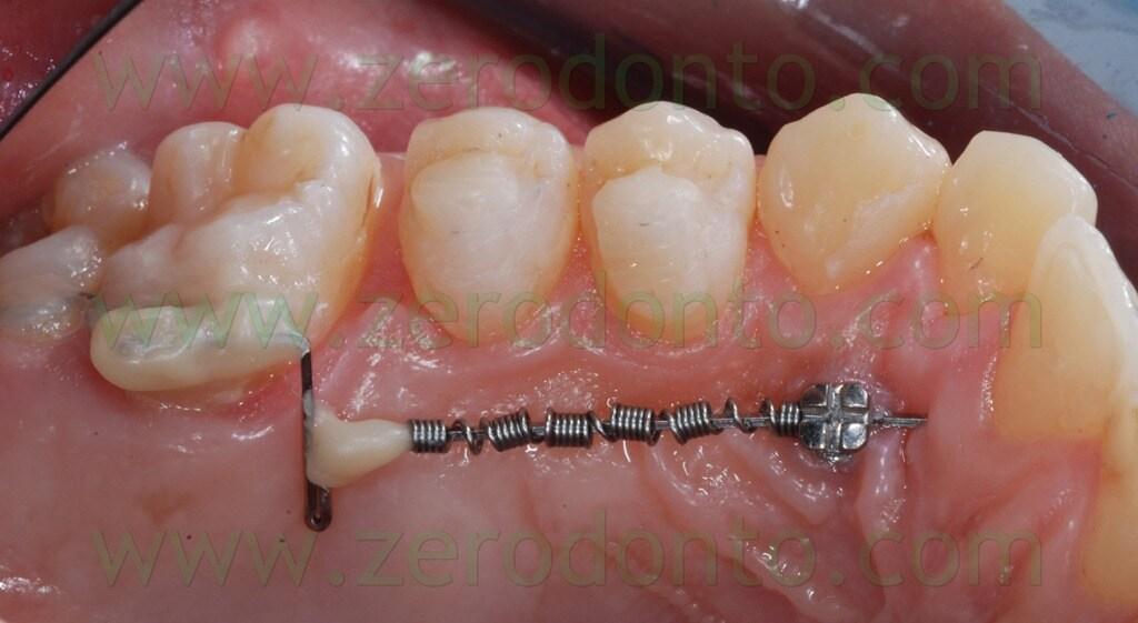 23 sistema per distalizzare i molari