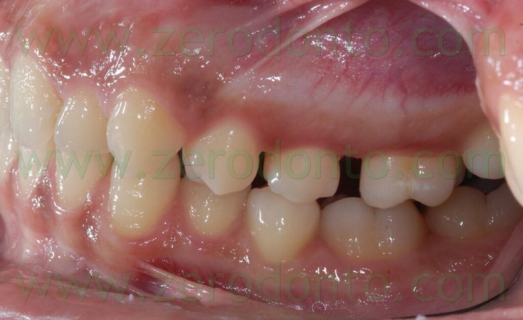 26 correzione rapporto di classe molare