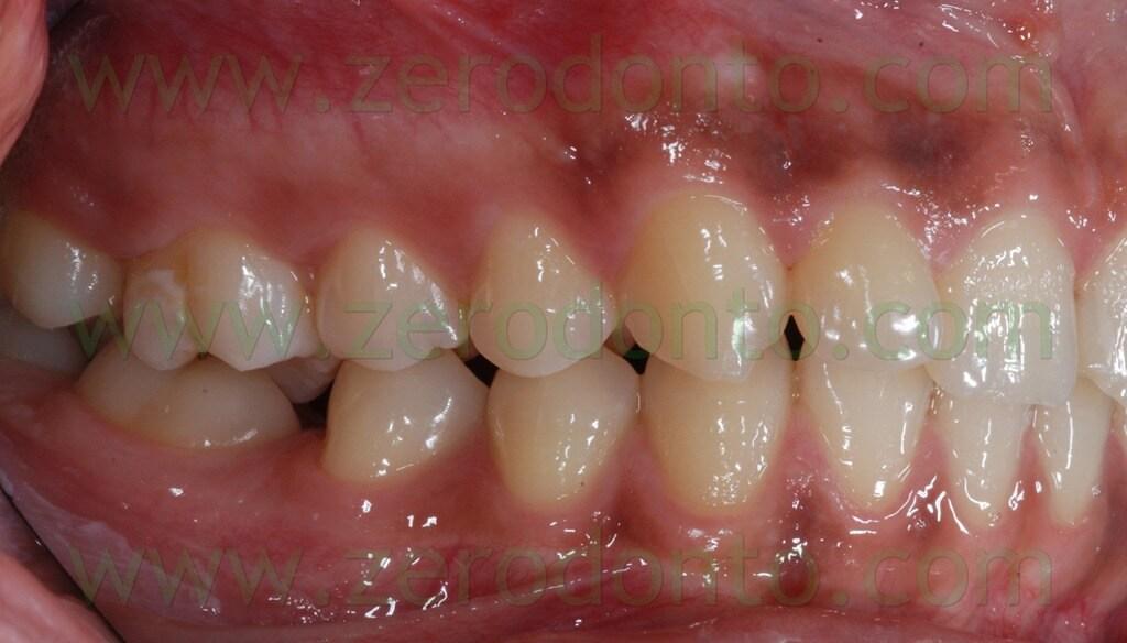 3 laterale seconda classe molare e canina