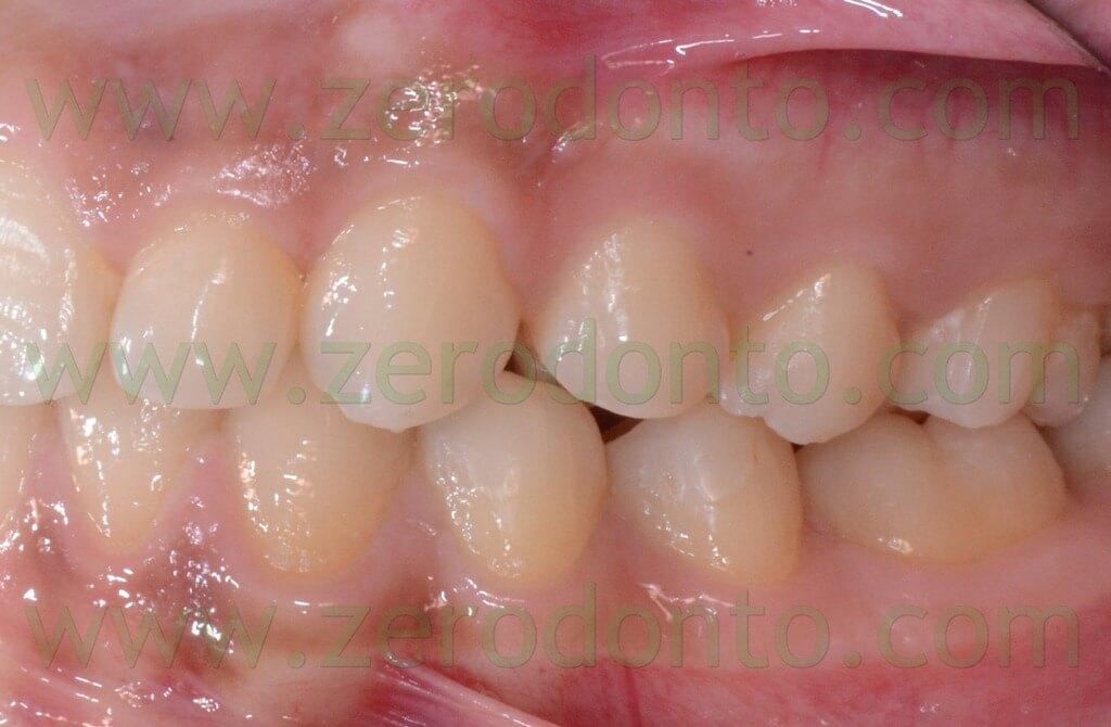 39 prima classe molare e canina