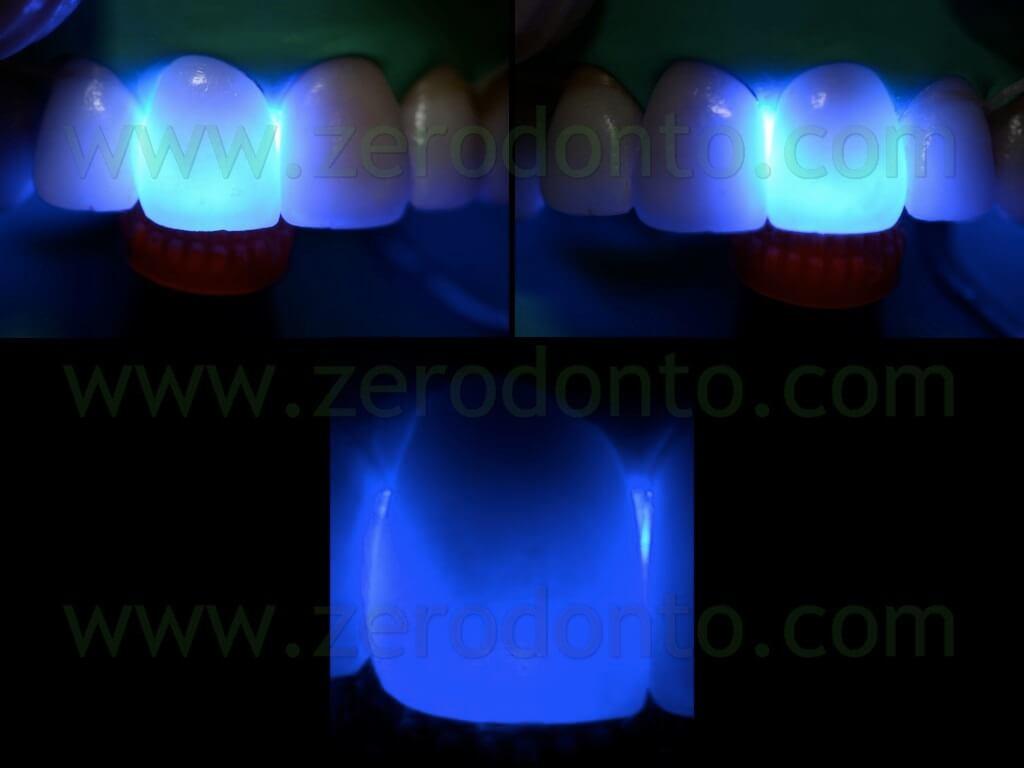 118 transilluminazione luce alogena faccette