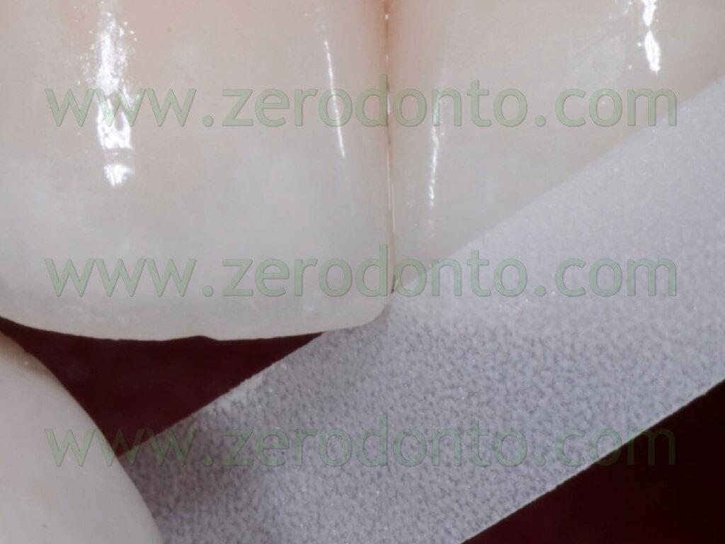 120 strip abrasive rifinitura interdentale faccette