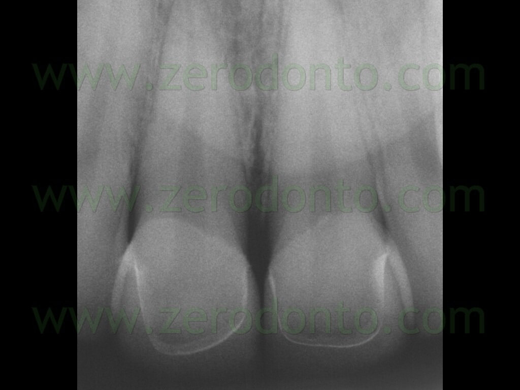 122 radiografia endorale facette