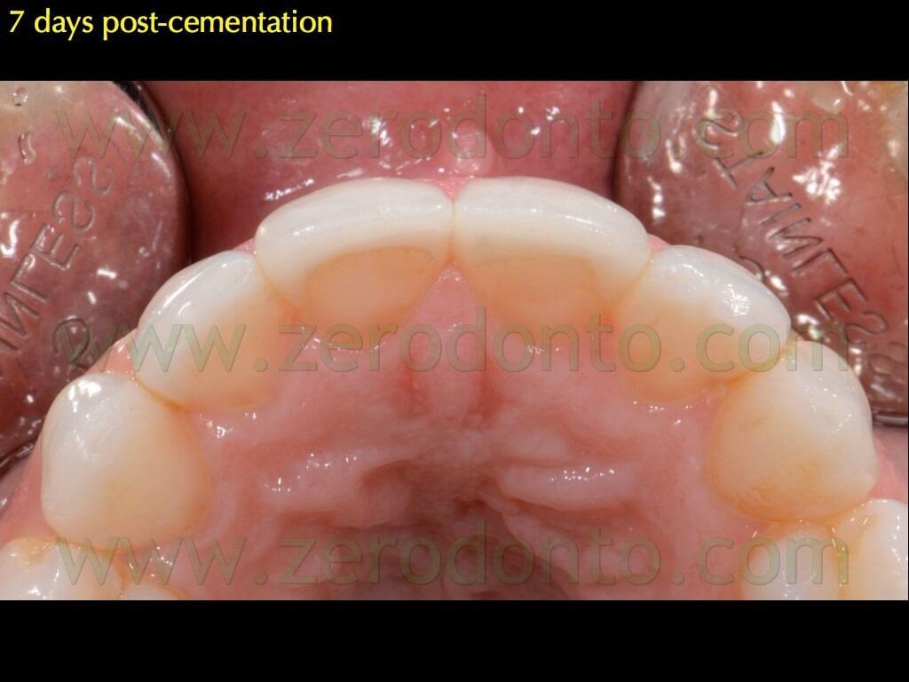 131 occlusione faccette chamfer palatal overlap