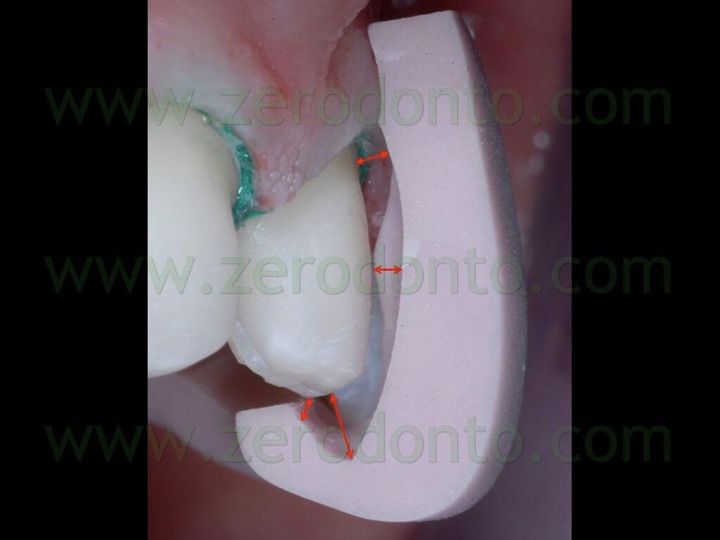 65 preparazione dentina faccette