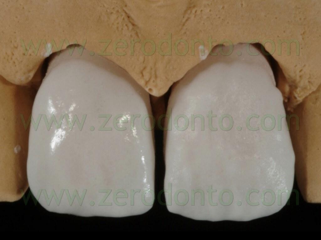 90 stratificazione ceramica massa dentina faccette