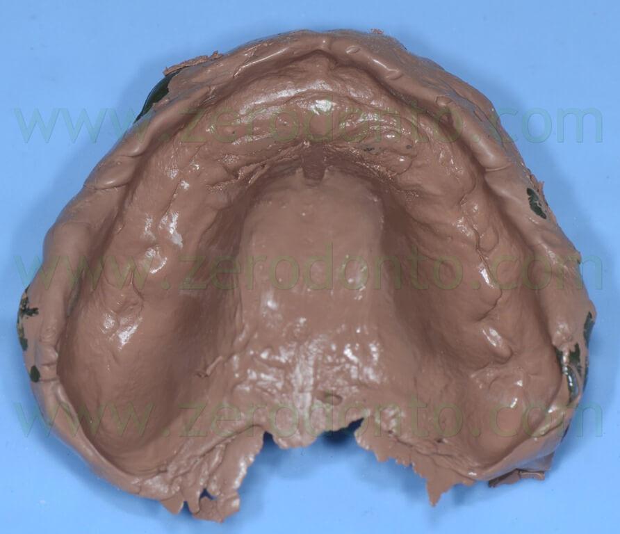 - (33) impronta polisolfuro