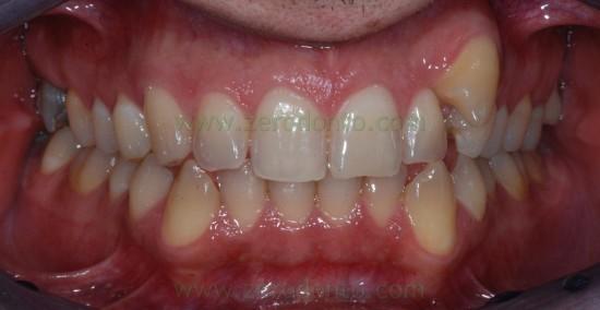 1 canino ortodonzia sovradente[3]