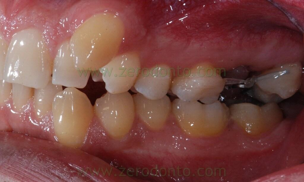 13 ortodonzia invisibile