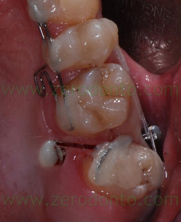 19 minivite ortodonzia