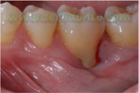 """Hopeless tooth"" treatment 2"