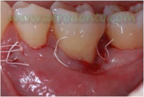 """Hopeless tooth"" treatment 7"