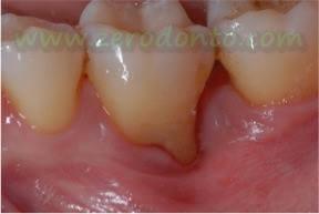 """Hopeless tooth"" treatment 9"