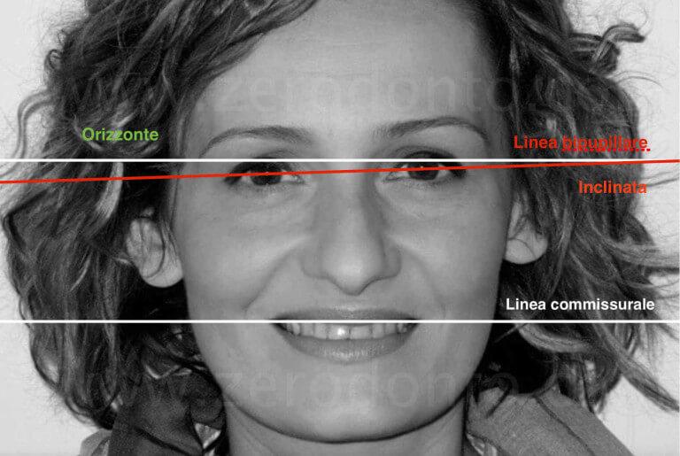linea bipupillare piano orizzontale in paziente asimmetrico